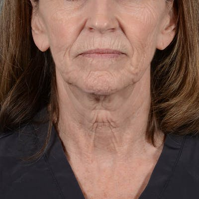 Facelift Gallery - Patient 26798787 - Image 1