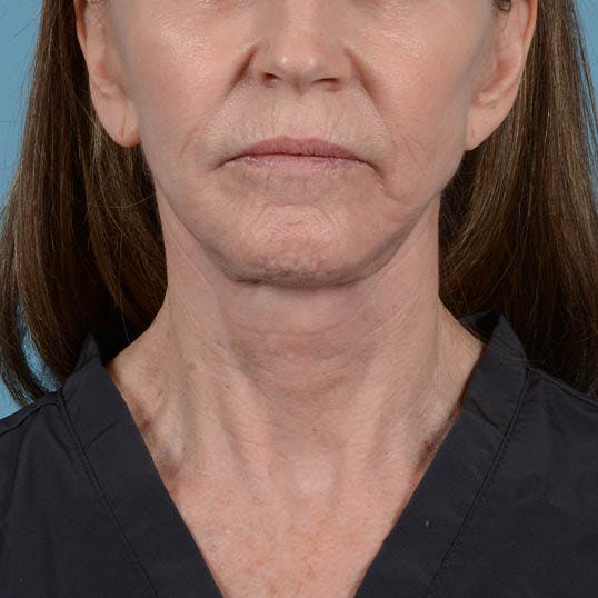 Facelift Gallery - Patient 26798787 - Image 2