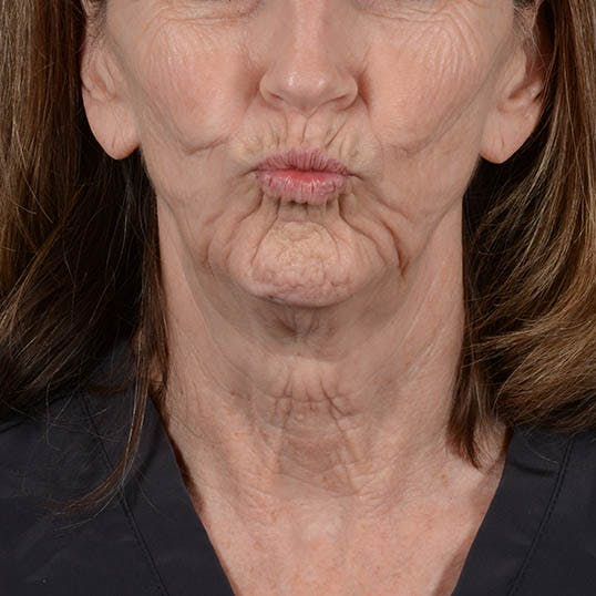 Facelift Gallery - Patient 26798787 - Image 3