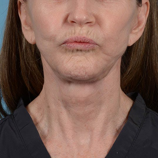 Facelift Gallery - Patient 26798787 - Image 4