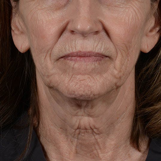 Facelift Gallery - Patient 26798787 - Image 5