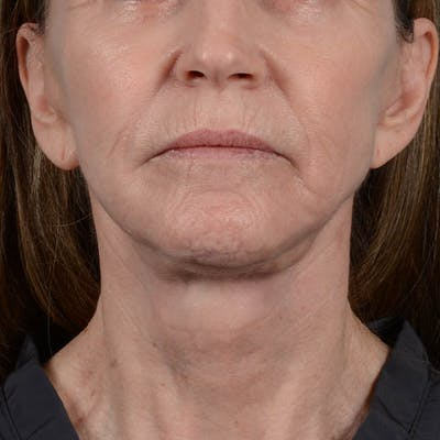 Facelift Gallery - Patient 26798787 - Image 6