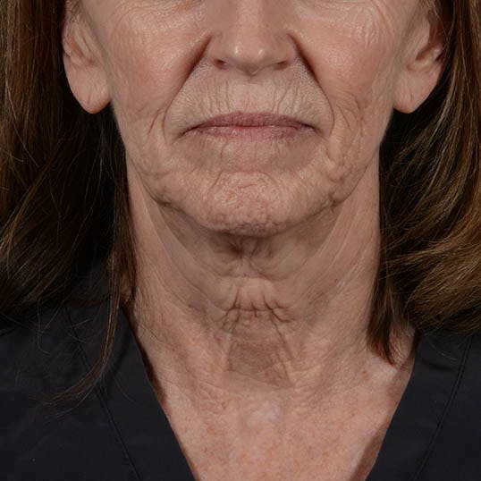 Facelift Gallery - Patient 26798787 - Image 7