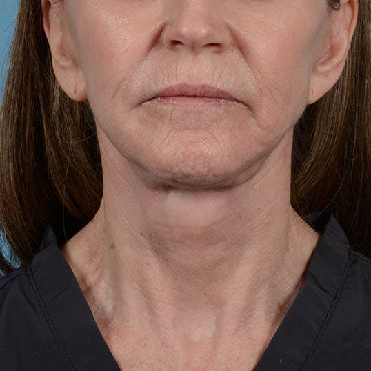 Facelift Gallery - Patient 26798787 - Image 8