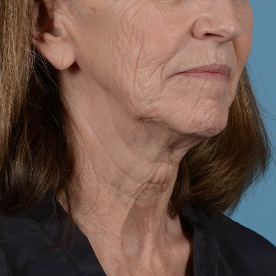 Facelift Gallery - Patient 26798787 - Image 13