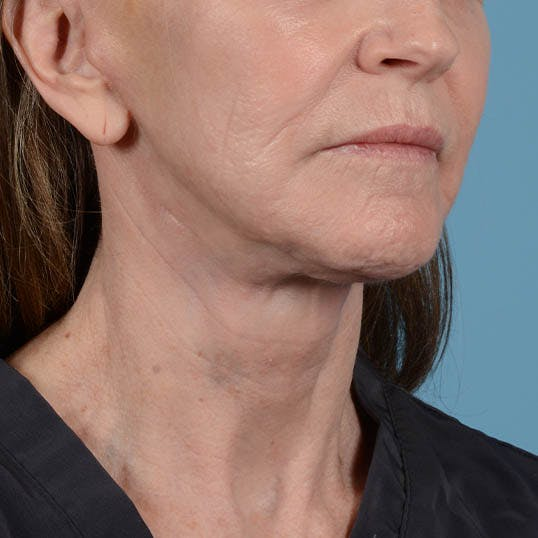 Facelift Gallery - Patient 26798787 - Image 14