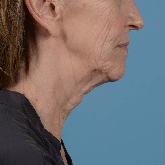 Facelift Gallery - Patient 26798787 - Image 15