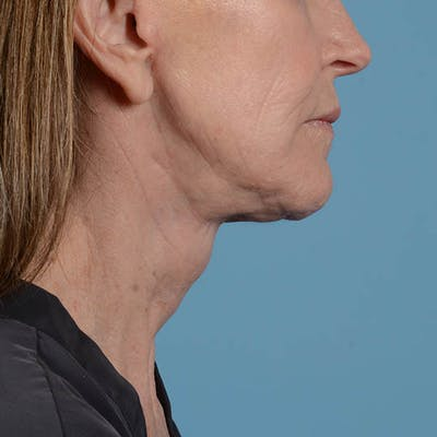 Facelift Gallery - Patient 26798787 - Image 16