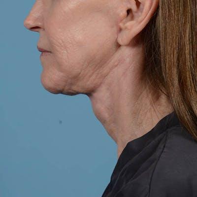 Neck Lift Gallery - Patient 26805854 - Image 8
