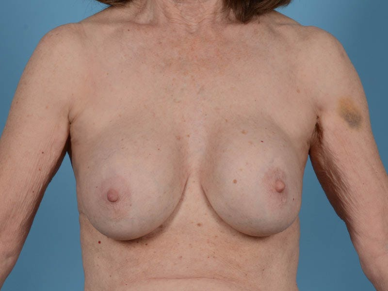 Breast Augmentation Gallery - Patient 26810031 - Image 1