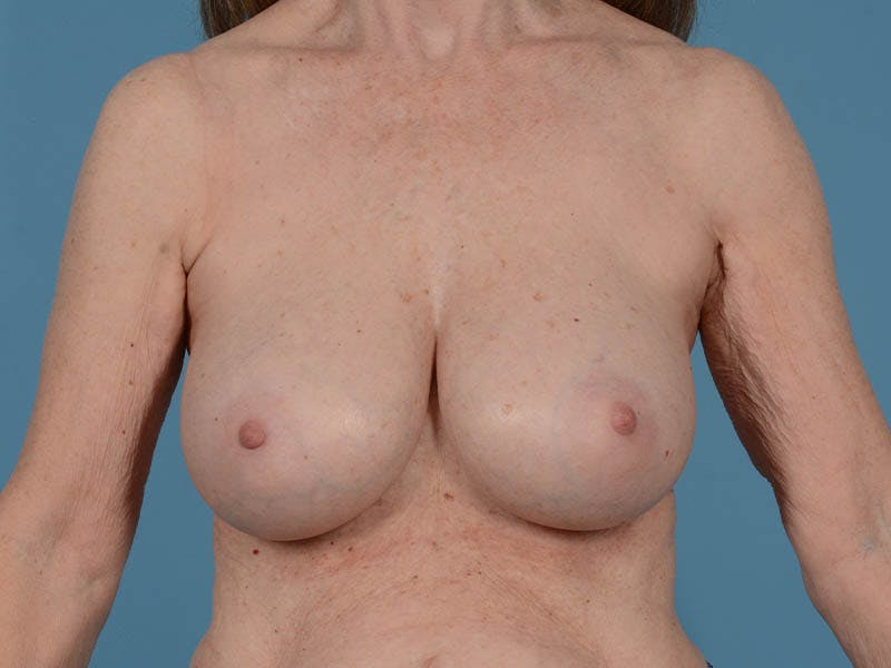 Breast Augmentation Gallery - Patient 26810031 - Image 2