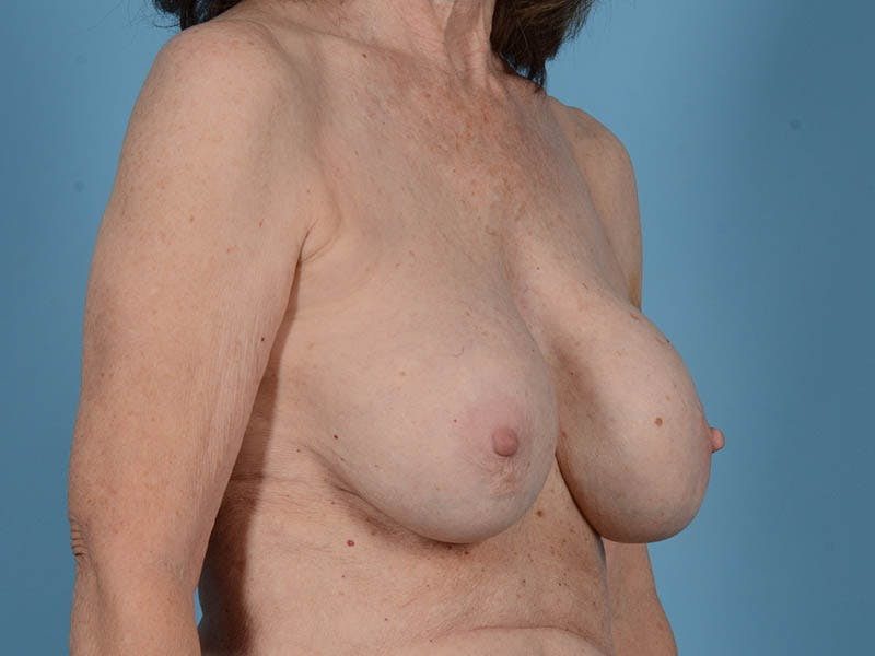 Breast Augmentation Gallery - Patient 26810031 - Image 3