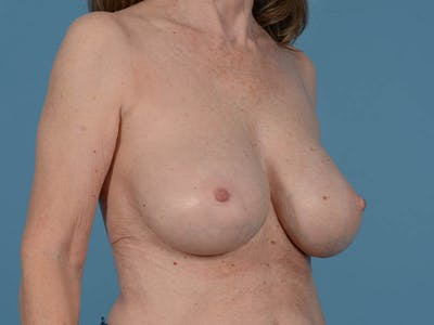 Breast Augmentation Gallery - Patient 26810031 - Image 4