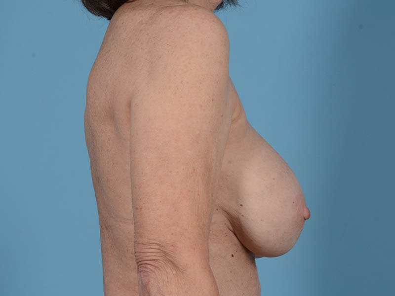 Breast Augmentation Gallery - Patient 26810031 - Image 5