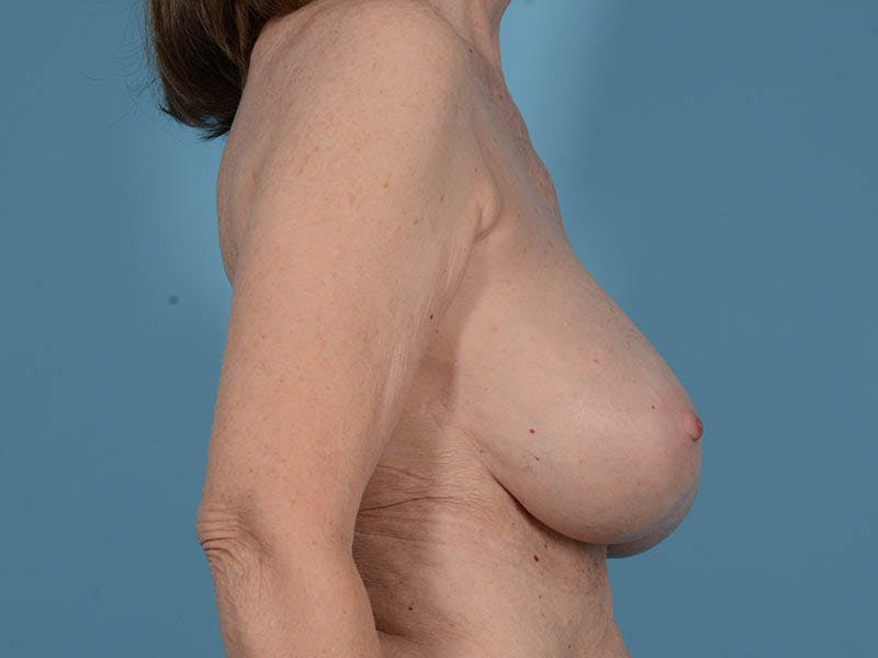 Breast Augmentation Gallery - Patient 26810031 - Image 6