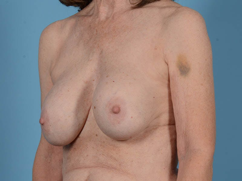 Breast Augmentation Gallery - Patient 26810031 - Image 7