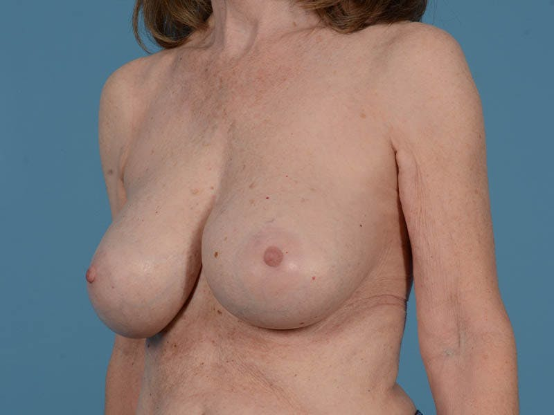 Breast Augmentation Gallery - Patient 26810031 - Image 8