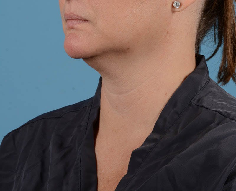 Liposuction Gallery - Patient 26815743 - Image 1
