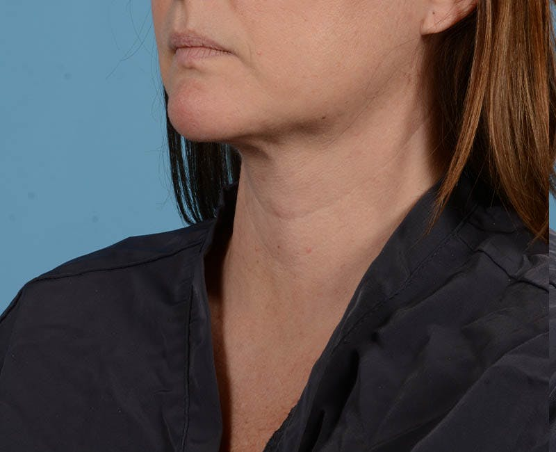 Liposuction Gallery - Patient 26815743 - Image 2