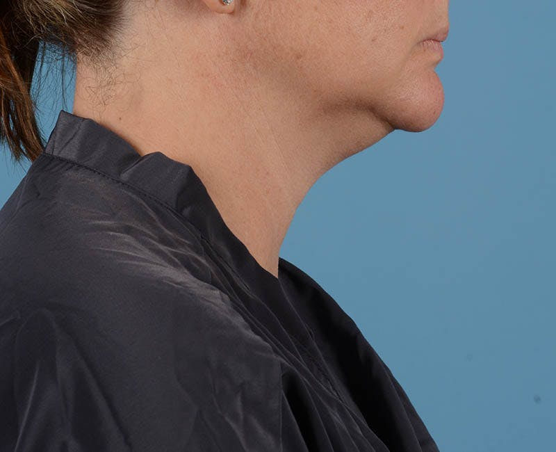 Liposuction Gallery - Patient 26815743 - Image 3