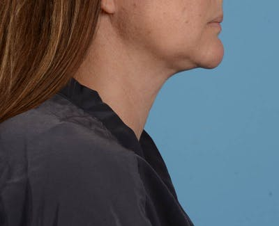 Liposuction Gallery - Patient 26815743 - Image 4