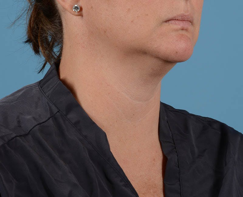 Liposuction Gallery - Patient 26815743 - Image 5