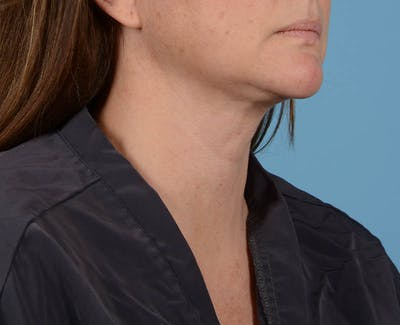 Liposuction Gallery - Patient 26815743 - Image 6
