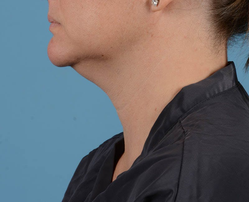Liposuction Gallery - Patient 26815743 - Image 7