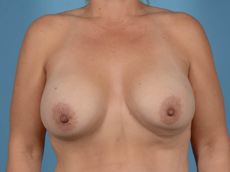 Breast Implant Exchange Gallery - Patient 26817210 - Image 1