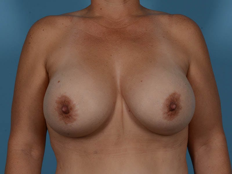 Breast Implant Exchange Gallery - Patient 26817210 - Image 2