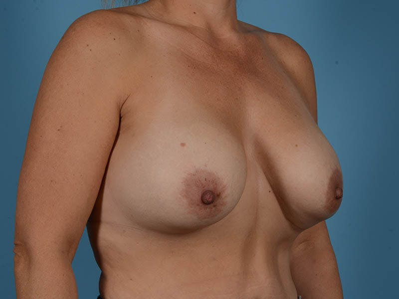 Breast Implant Exchange Gallery - Patient 26817210 - Image 3