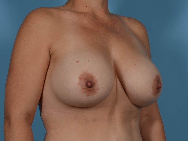 Breast Implant Exchange Gallery - Patient 26817210 - Image 4