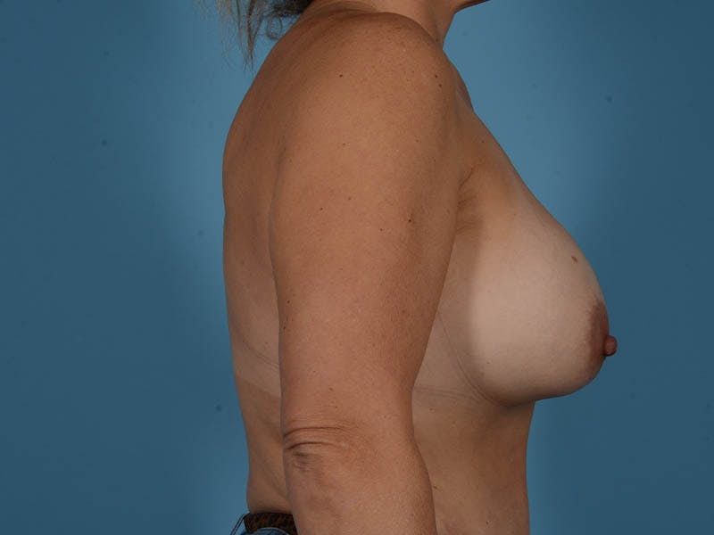 Breast Implant Exchange Gallery - Patient 26817210 - Image 5