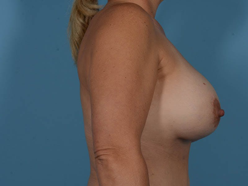 Breast Implant Exchange Gallery - Patient 26817210 - Image 6