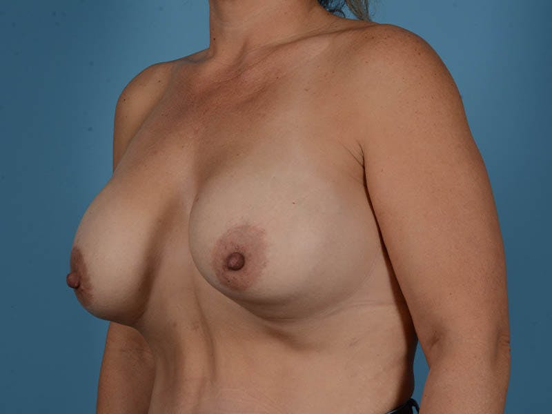 Breast Implant Exchange Gallery - Patient 26817210 - Image 7