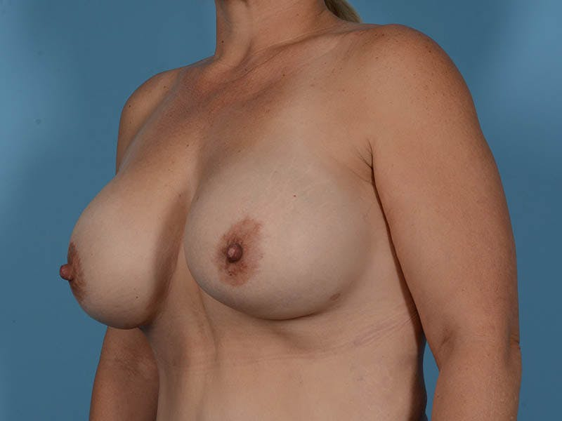 Breast Implant Exchange Gallery - Patient 26817210 - Image 8