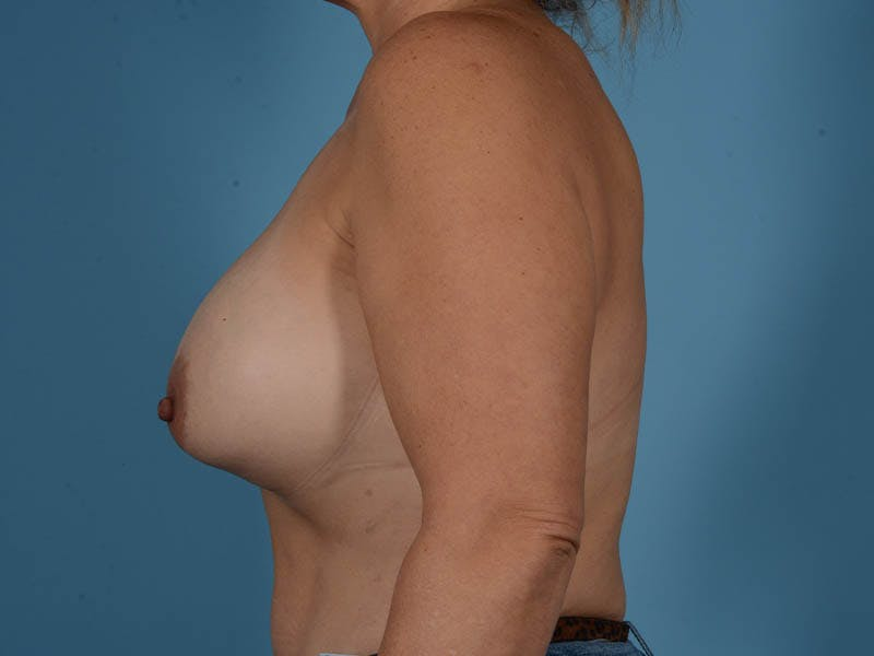 Breast Implant Exchange Gallery - Patient 26817210 - Image 9
