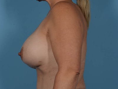 Breast Implant Exchange Gallery - Patient 26817210 - Image 10