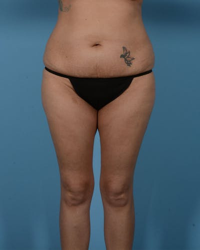 Mommy Makeover Gallery - Patient 33741749 - Image 1