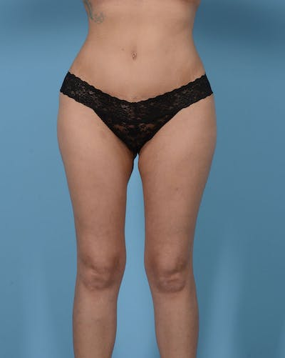 Mommy Makeover Gallery - Patient 33741749 - Image 2