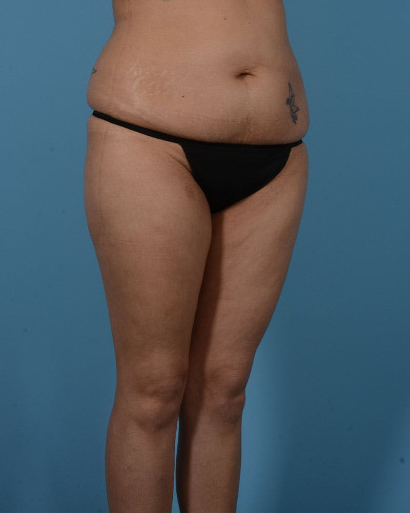 Mommy Makeover Gallery - Patient 33741749 - Image 3