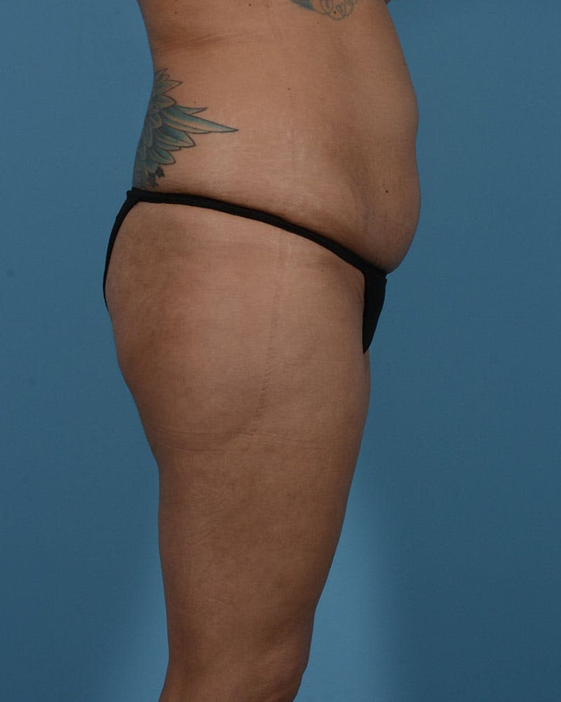 Mommy Makeover Gallery - Patient 33741749 - Image 5