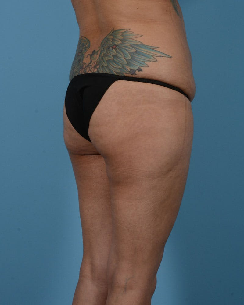 Mommy Makeover Gallery - Patient 33741749 - Image 7