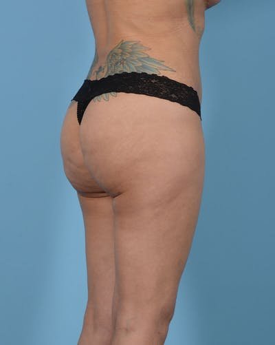 Mommy Makeover Gallery - Patient 33741749 - Image 8
