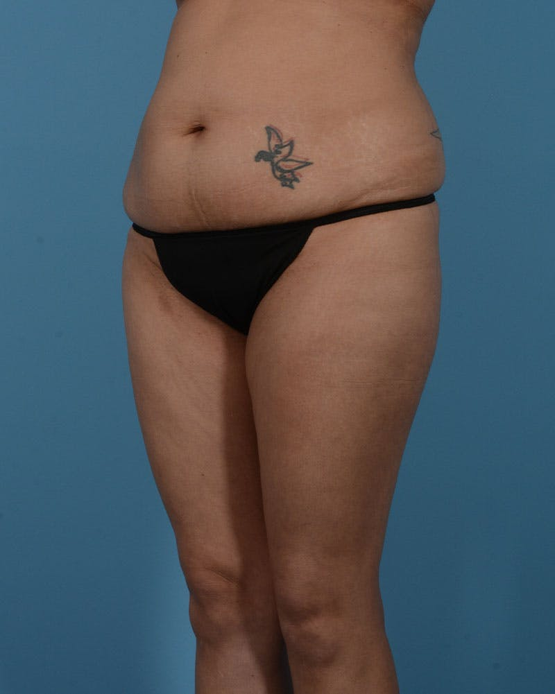 Mommy Makeover Gallery - Patient 33741749 - Image 9