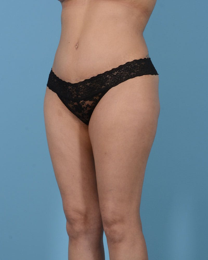 Mommy Makeover Gallery - Patient 33741749 - Image 10