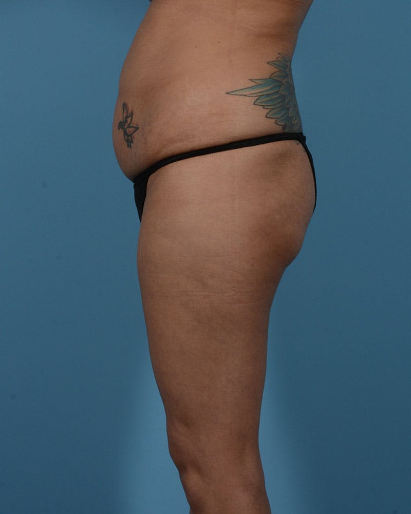 Mommy Makeover Gallery - Patient 33741749 - Image 11