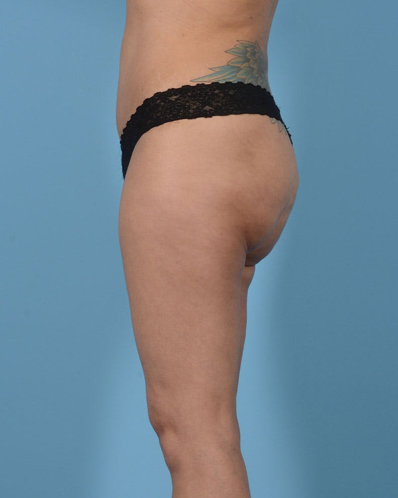 Mommy Makeover Gallery - Patient 33741749 - Image 12
