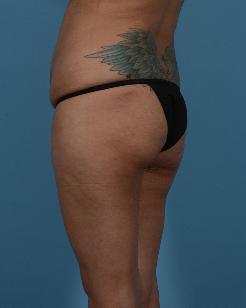 Mommy Makeover Gallery - Patient 33741749 - Image 13