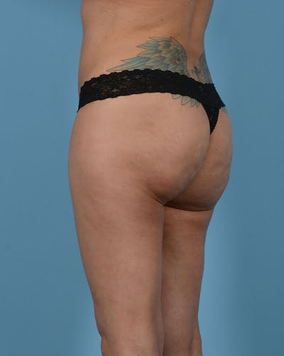 Mommy Makeover Gallery - Patient 33741749 - Image 14